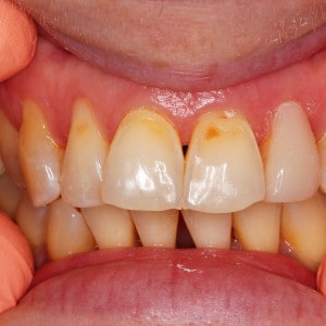 cosmetic dentistry - after treatment